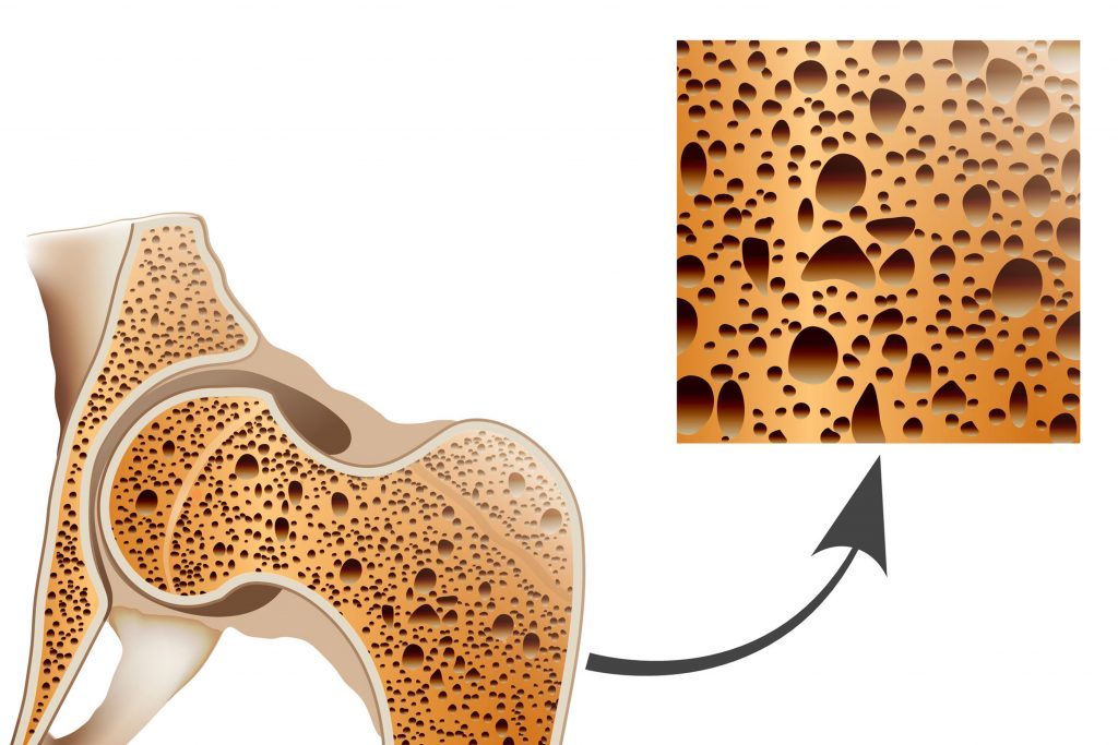 ejercicios para la osteoporosis 3s salud huesca