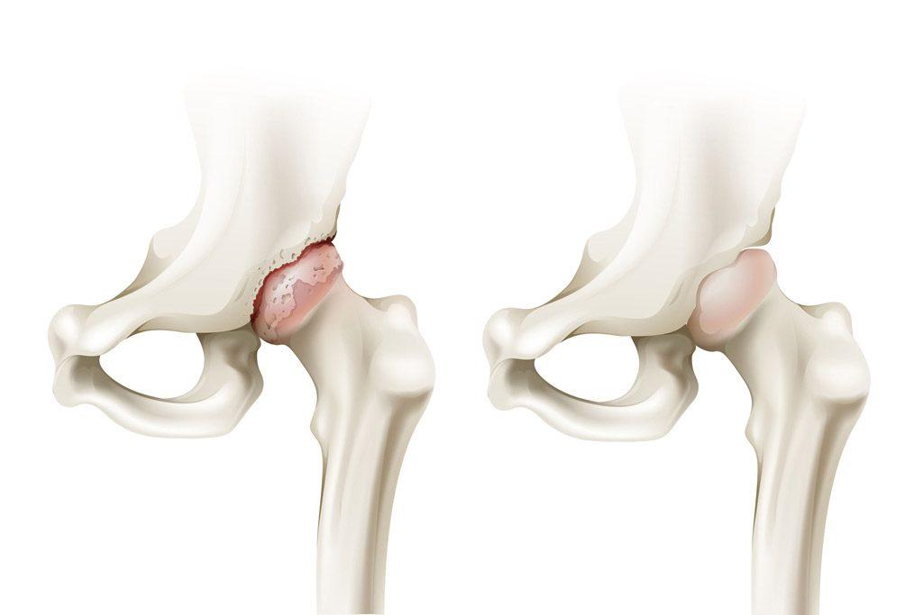 salud-3s-artrosis